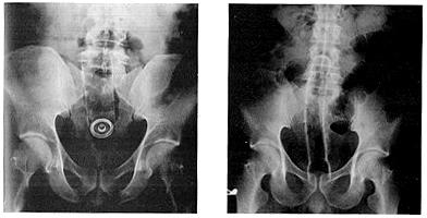 Инородные тела прямой кишки порно